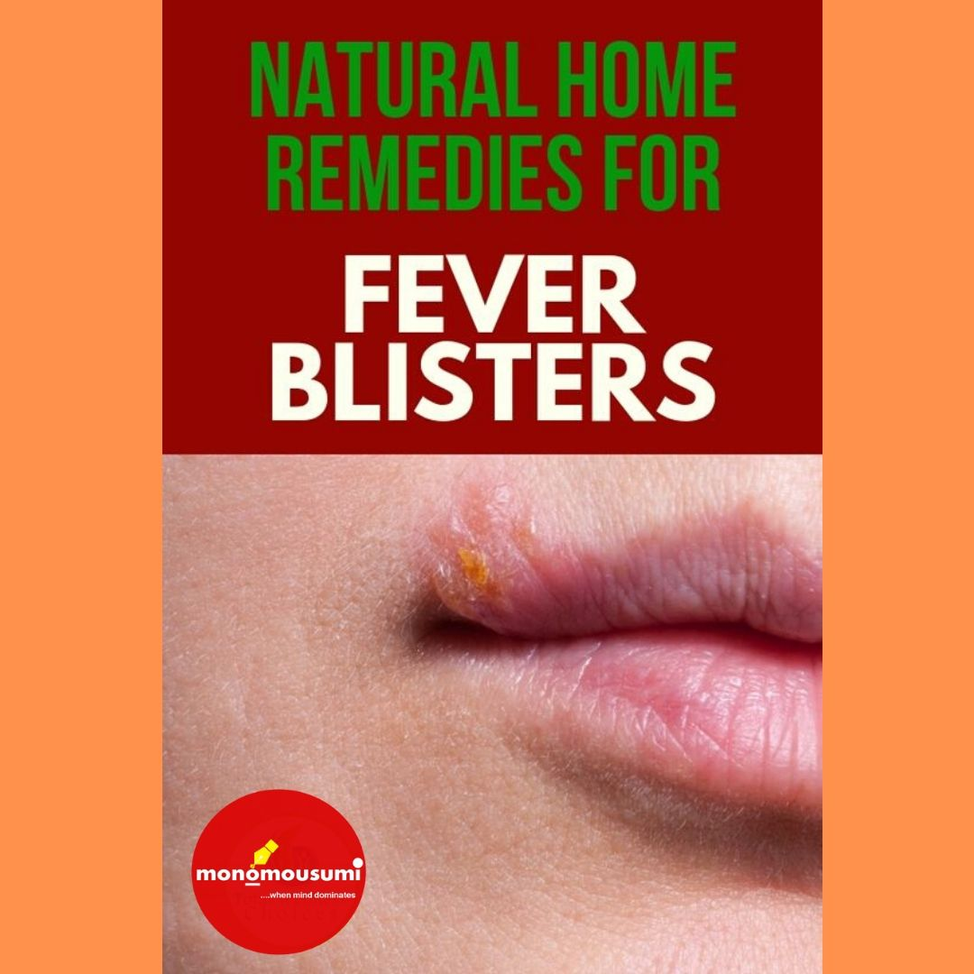 Natural Home Remedies to Treat a Fever Blister | 'Monomousumi'